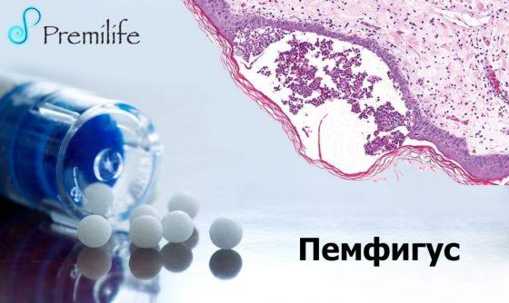 pemphigus-russian