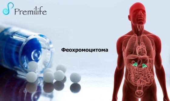 pheochromocytoma-russian