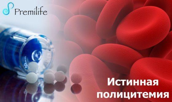 polycythemia-vera-russian