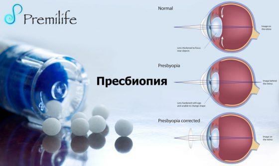 presbyopia-russian