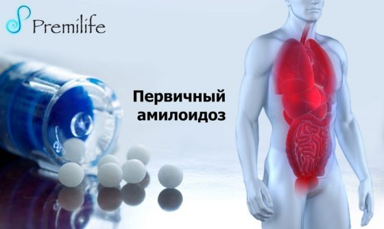 primary-amyloidosis-russian