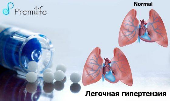 pulmonary-hypertension-russian