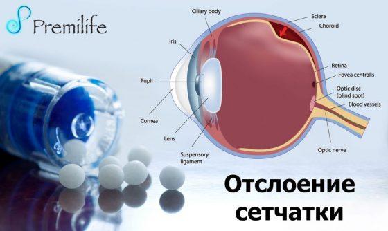retinal-detachment-russian