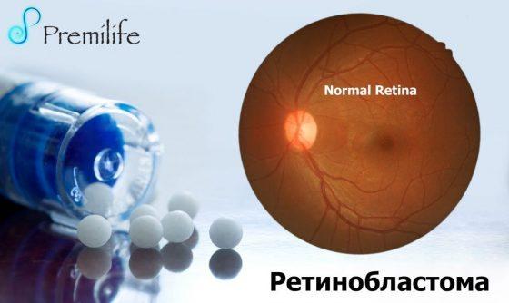 retinoblastoma-russian