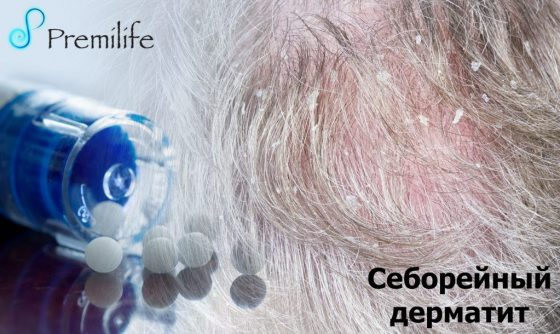 seborrheic-dermatitis-russian