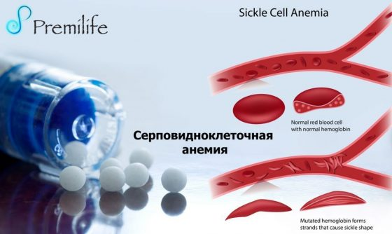 sickle-cell-anemia-russian