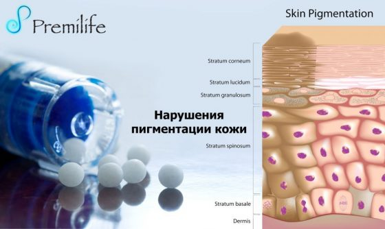 skin-pigmentation-disorders-russian
