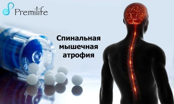 spinal-muscular-atrophy-russian