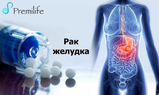 stomach-cancer-russian