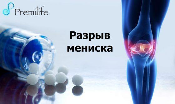 tear-of-meniscus-russian