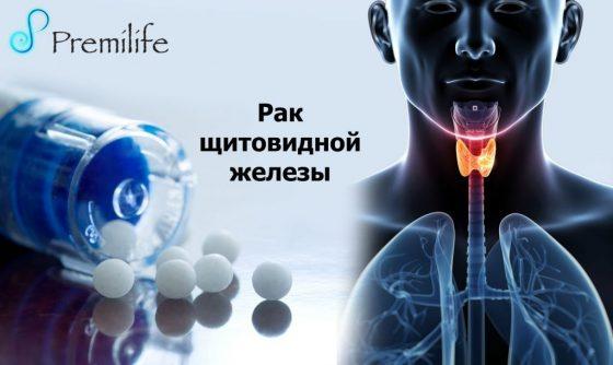 thyroid-cancer-russian