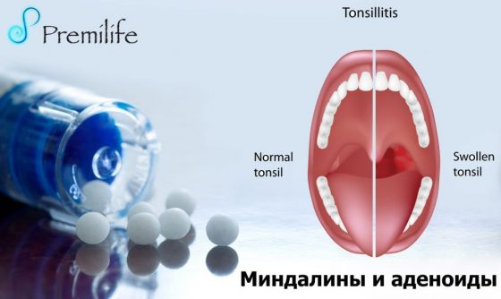 tonsils-and-adenoids-russian