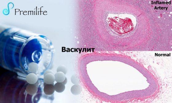 vasculitis-russian