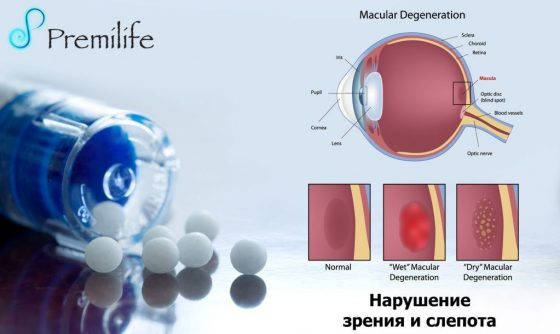 vision-impairment-and-blindness-russian