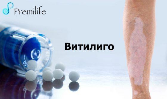 vitiligo-russian