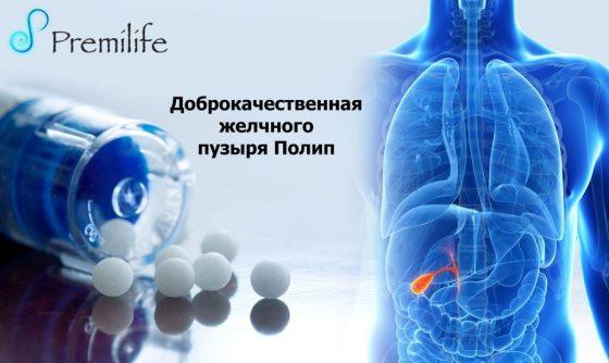Benign-Gallbladder-Polyp-russian