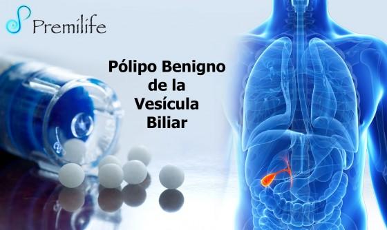 Benign-Gallbladder-Polyp-spanish