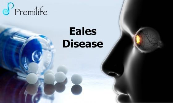 Eales-Disease