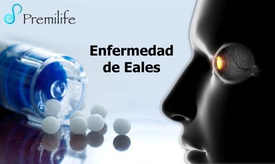 Eales-Disease-spanish