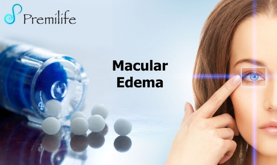 Macular-Edema