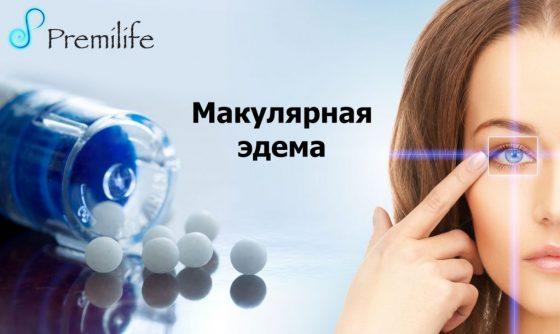 Macular-Edema-Russian