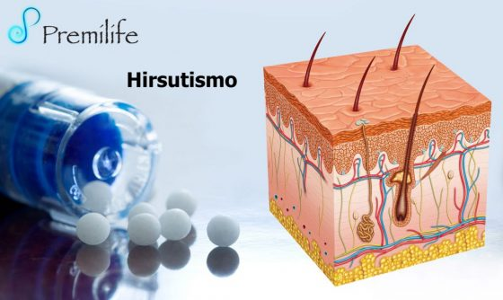 hirsutism-spanish