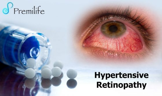 hypertensive-retinopathy