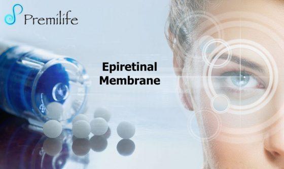 epiretinal-membrane