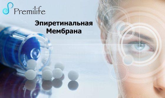epiretinal-membrane-russian