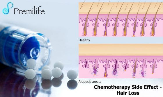 chemotherapy-side-effect-hair-loss